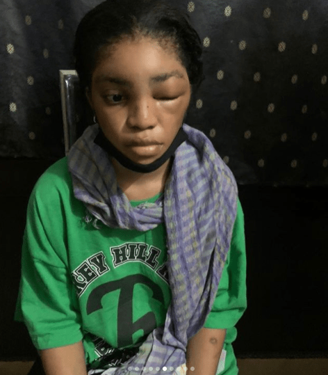 DMW act, Lil Frosh called out for allegedly assaulting girlfriend lindaikejisblog 5