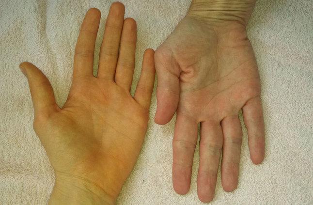 اسباب اصفرار اليدين ومتى يجب أن تستشير الطبيب اخبار