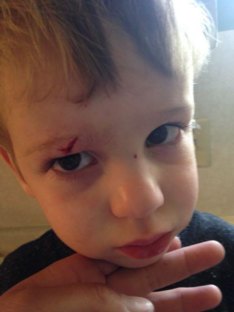 Lucas Got Stitches