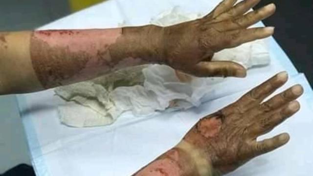 Sanitizer burnt hand