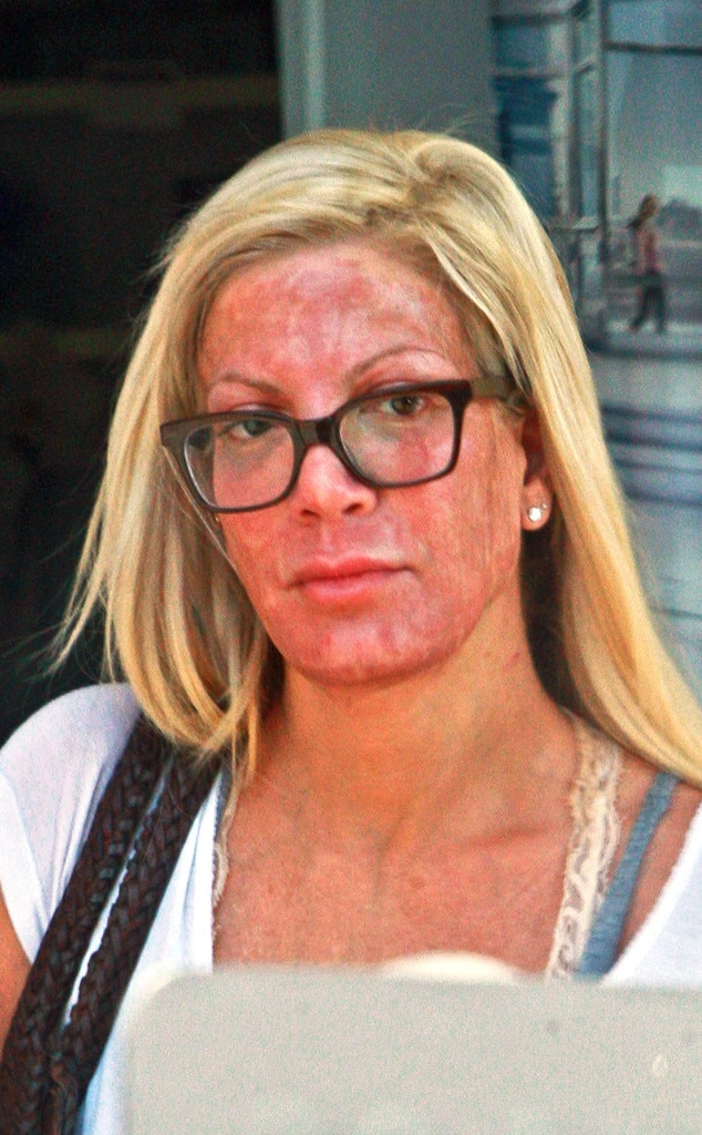 Tori Spelling Leaves A Medical Spa With A Very Blotchy Red