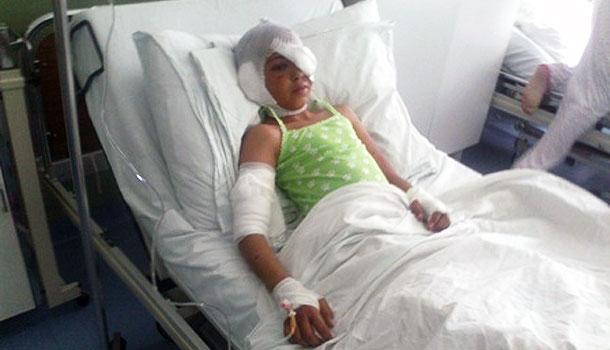 Djevojčica iz Mostara nastradala od pasa lutalica