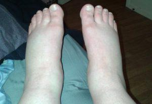 Svullna fötter vid preeklampsi.