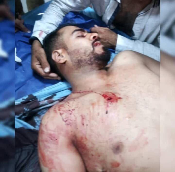 عباس منصوري عساكرة احد ضحايا مجزرة معشور-الجرحي27-11-2019_1