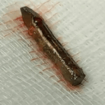 بالفيديو والصور: لحظة استخراج قطعة حديدية اخترقت قلب عشريني في مستشفى بنجران