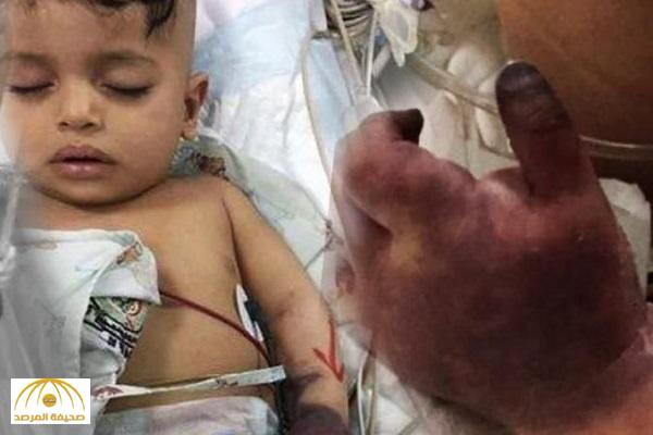 """""""الحقن تم بالشريان بدلا من الوريد"""".. والد الطفل جسار يكشف تفاصيل بتر يد ابنه .. والسبب إهمال المستشفى! – فيديو"""