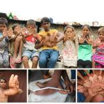 """بالصور و الفيديو : حالة مرضية نادرة تحول الصبي طارق إلى """"الشيطان"""" في الهند"""