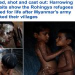 بالصور: بنجلاديش تستقبل الفارين من الروهينجا المسلمين و توثق مظاهر تعذيبهم