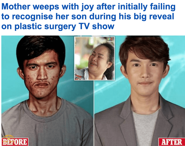 شاهد: كيف غيرت جراحة تجميلية شاب تايلاندي قبيح الوجه إلى آخر وسيم.. ولهذا السبب بكت أمه!