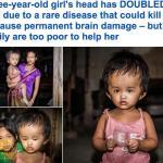 بالصور والفيديو : شاهد أغرب رأس طفلة في العالم !