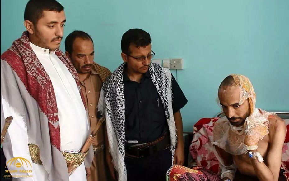 """بعد تعذيب ميليشيا الحوثي لشاب يمني وحرق جسده بالكامل.. بالفيديو: طبيب يدلي بشهادته: هذا ما تعرض له """"منير"""""""