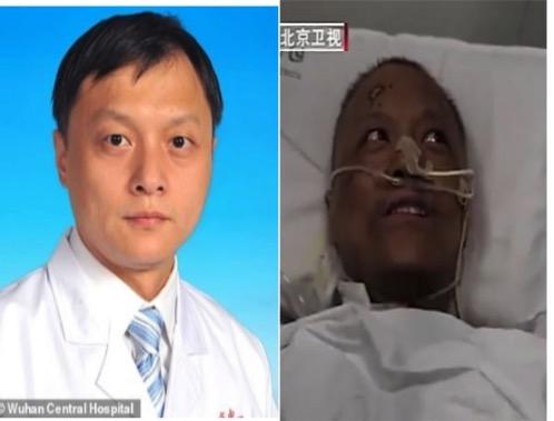 """""""تغير لون بشرتهم"""".. شاهد: صور صادمة لأطباء صينيين  بعد إصابتهم بكورونا!"""