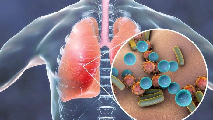 الرئتين في جسم الانسان دراسة البكتيريا الموجودة في الرئتين تلعب دورا في تطور السرطان العيادة