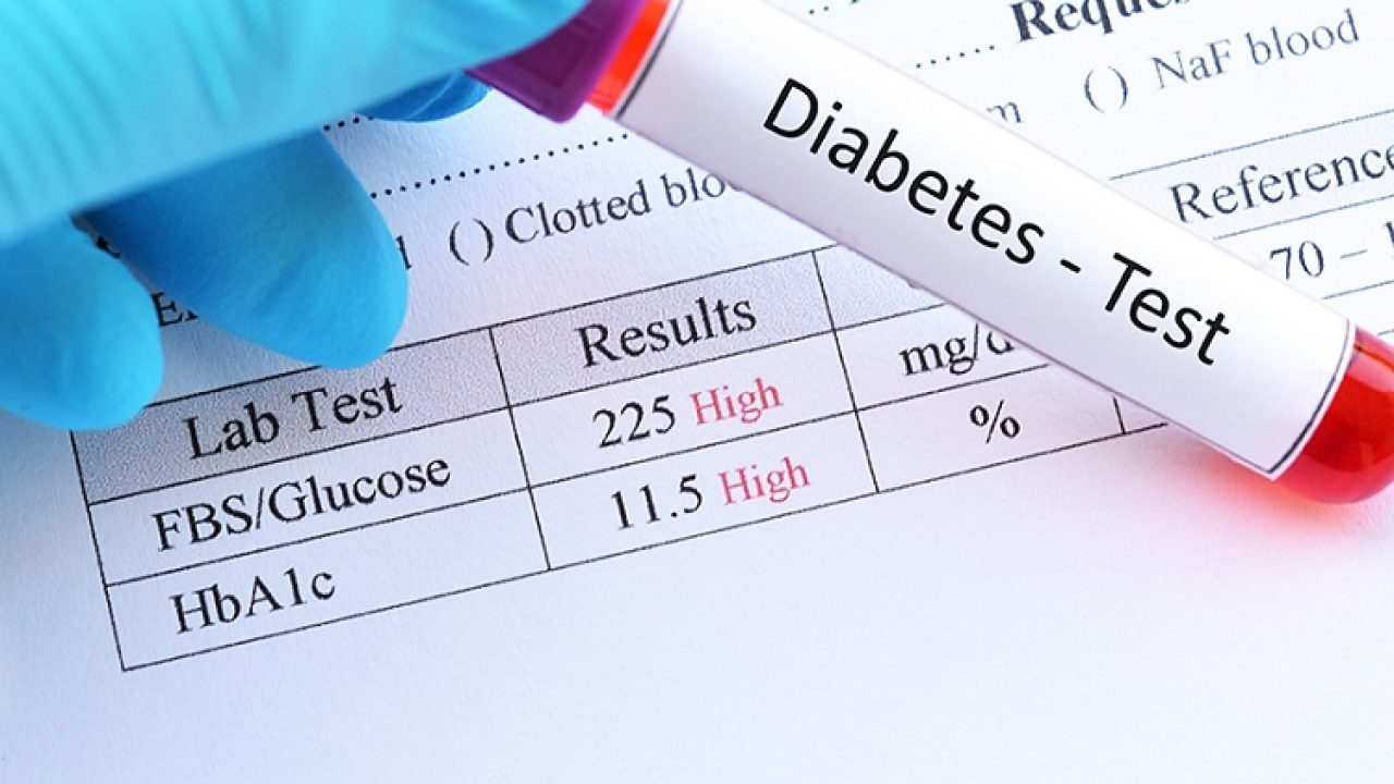 Rbs تحليل اعرف ما هو تحليل السكر العشوائي وماذا تعني النتائج العيادة