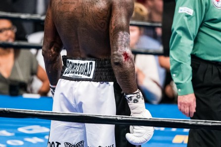 Deontay Wilder said the cut on his arm came from doing yard work, but it was the internal injuries to his right hand and arm during the fight that required medical treatment when it was over. (Nik Layman/Alabama NewsCenter)