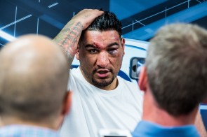 Chris Arreola after his fight against Deontay Wilder. (Nik Layman/Alabama NewsCenter)
