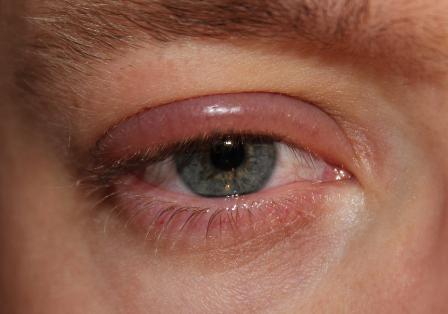 mata gatal dan bengkak