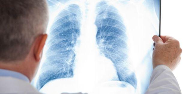 Ketahui Bahaya Bronkitis