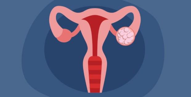 Kenali Penyebab Kista Ovarium