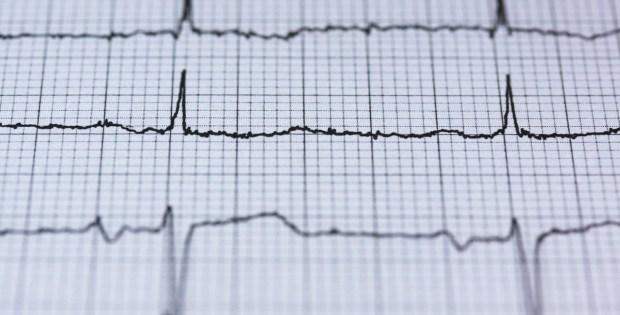 Jangan Sepelekan Serangan Jantung