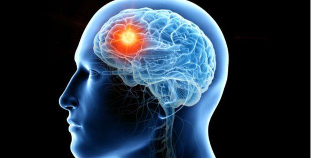 Waspadai Gejala Tumor Otak