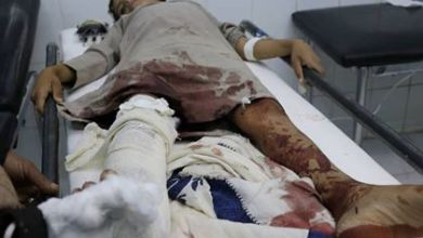 Photo of اصابة طفل بانفجار لغم أرضي زرعته المليشيا الحوثية في البيضاء
