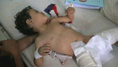 Photo of قذائف الحوثي ورشاشاته تصيب 7 أطفال في تعز والحديدة ( أسماء وصور )