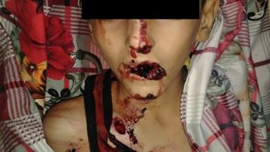 Photo of استشهاد طفل وإصابة شقيقه برصاص قناص حوثي بمدينة تعز