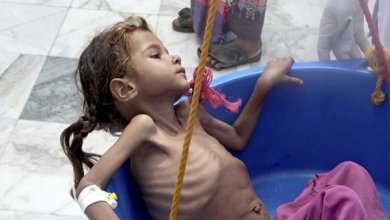 Photo of الأمم المتحدة تحذر : سوء تغذية حاد هو الأعلى بين أطفال اليمن