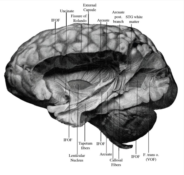 Major Brain Pathway Rediscovered after Century-Old Confusion, Controversy