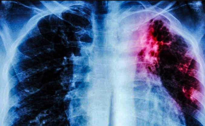 Alaska Ranks Highest in New National Data on Tuberculosis Rates