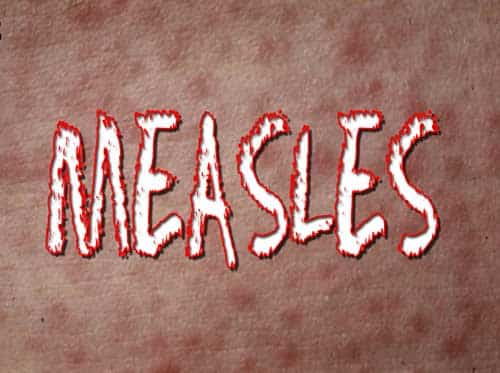 The National Measles Outbreak has Spread to Alaska-Please Get Vaccinated!