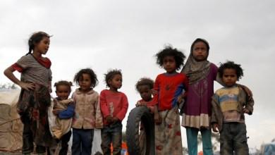صورة مظلومية أطفال اليمن تفضح الأنسانية الزائفة للأمم المتحدة