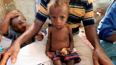 صورة اليمن يعاني من أسوا أزمة إنسانية في العالم ؟!
