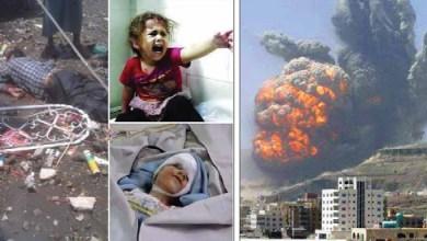 صورة آثار العدوان على اليمن وحصاره