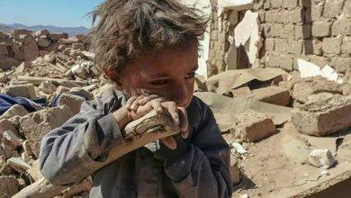 صورة العدوان عدو الطفولة في اليمن .؟!