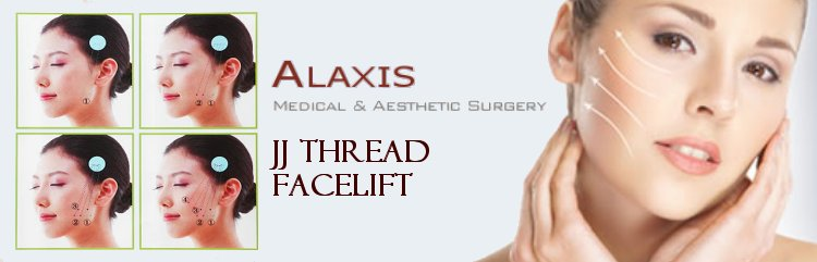 JJ Thread Fsacelift, One of the top Procedures carried out art Alaxis Medical and Aesthetic Clinic Singapore