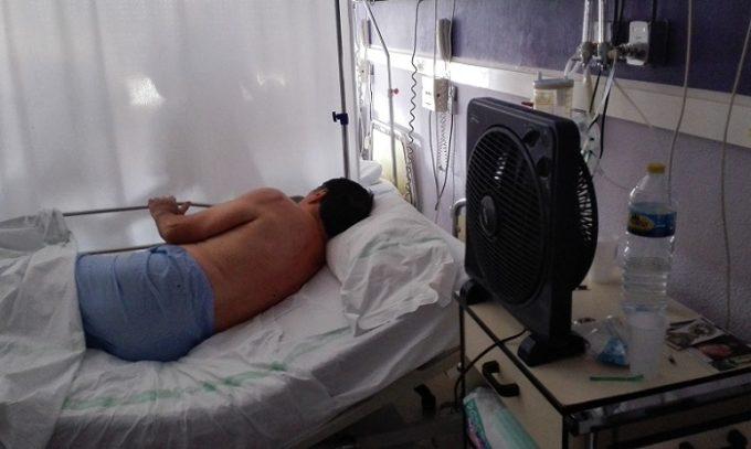 150715 paciente ventilador