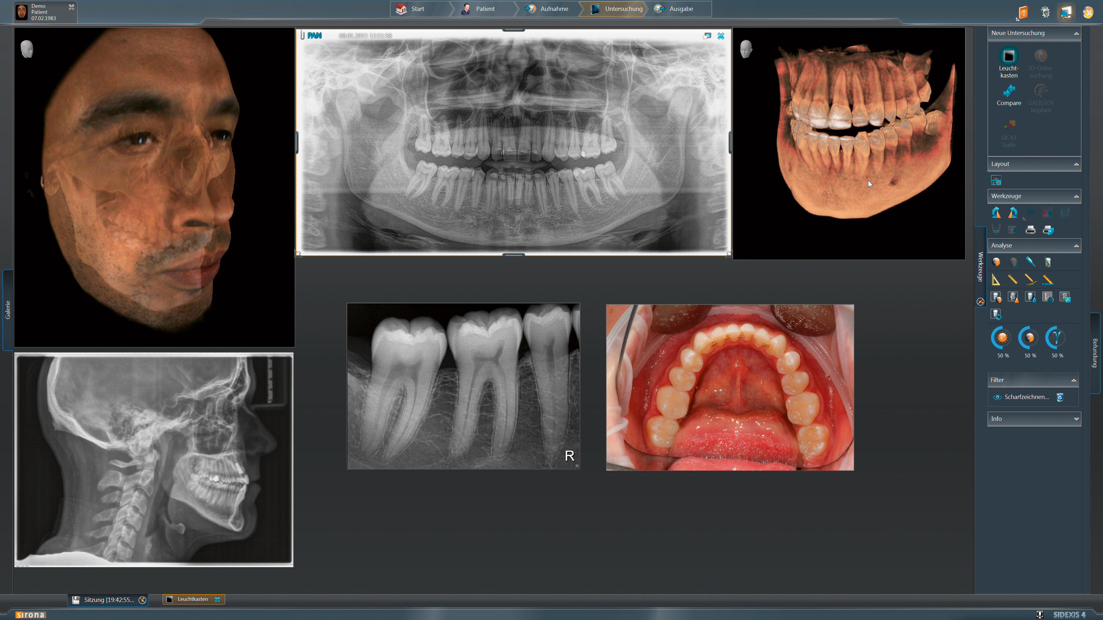 Screenshot of Sidexis software showing multiple versions of 3D X-ray files