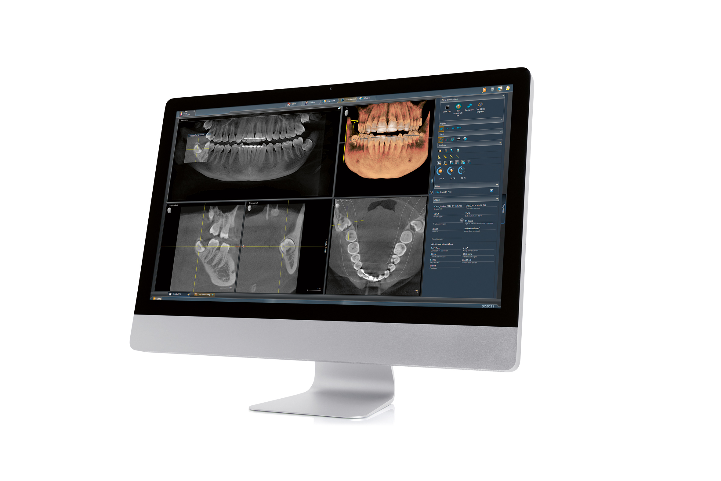 Sidexis software showing 3D X-ray files on screen of iMac