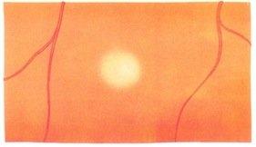 laser argon