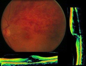 trombosi della vena centrale retinica