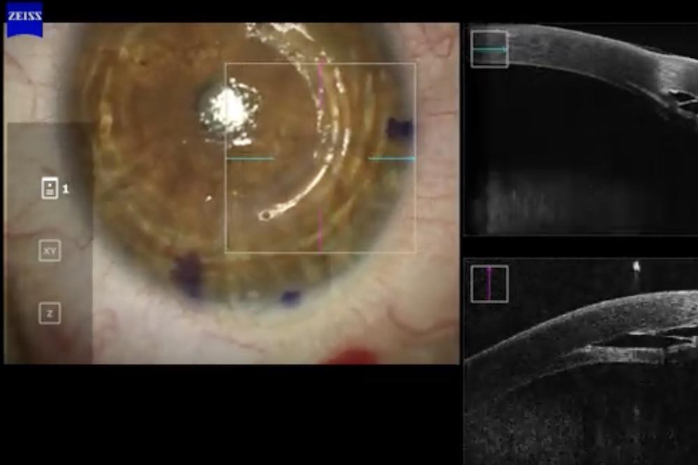 Impianto anelli intrastromali per cheratocono con microscopio Zeiss con OCT