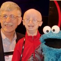 FDA aprueba el primer fármaco para la progeria, una enfermedad de rápido envejecimiento