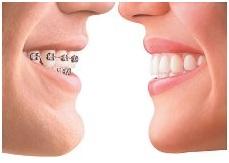 Alderbridge Dental - 口腔答疑