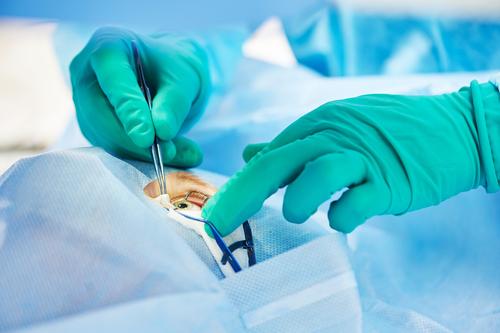 Supremo desestima causa de acción de responsabilidad estricta por productos defectuosos en caso de cirugía de corrección de visión
