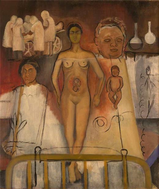 Frida Kahlo - la cesarea