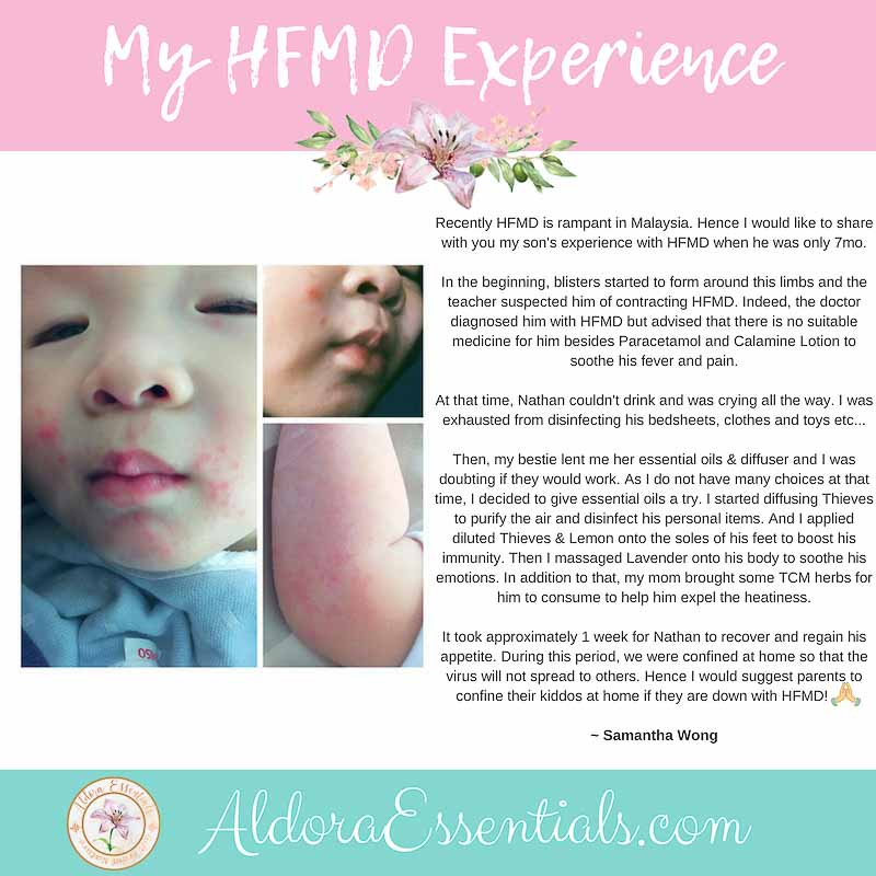 HFMD, YL, Young Living, Essential Oils, Thieves