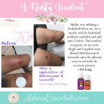 injuries, YL, Young Living, Helichrysum, Lavender, Essential Oils, Natural Remedies, Healing