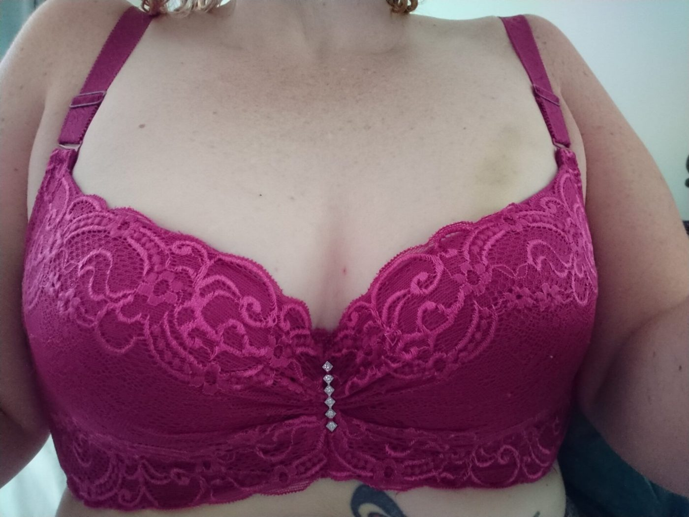Lady wearing a cerise lacy bra, Framed by the fabric are traces of finger print bruises on her left breast